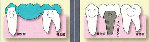 歯が中間で1本抜けた場合